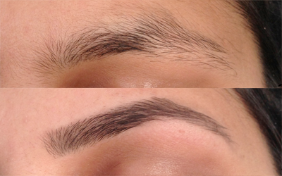 Before & After Threading Gallery